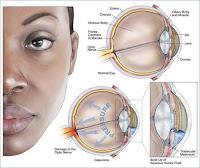 Ciri Ciri Penyakit Mata Glaukoma