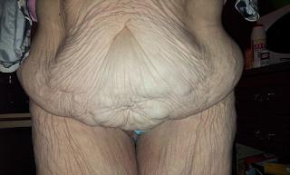 ΜΠΡΑΒΟ ΚΟΠΕΛΑ ΜΟΥ! Η γυναίκα με αυτό το σώμα έχασε 76 κιλά και δείτε τι κουκλάρα έγινε!