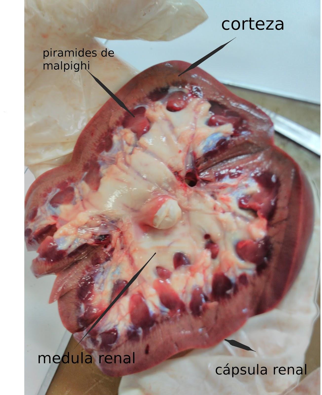 Anatomía aplicada, Carmen: DISECCIÓN DE RIÑÓN 2-5-2017