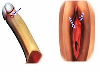 3 Resep Obat Sipilis pada Laki laki yang Direkomendasikan oleh Pakar Kesehatan
