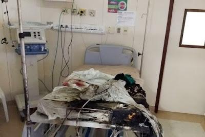 Na Paraíba, incêndio deixa paciente ferido e destrói leito de UTI em Hospital da Unimed