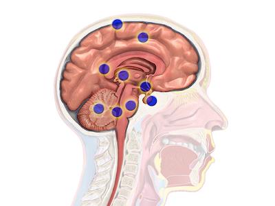 Thalamic stroke Left, Right, Prognosis, Treatment