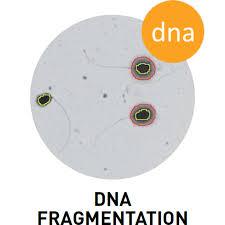 Cacat Bentuk Kepala Sperma sebab Fregmentasi DNA sperma