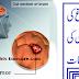 Brain Tumor Signs and Symptoms in Urdu