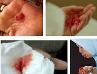 obat batuk berdarah