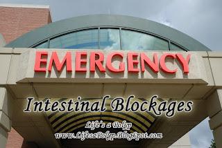 intestinal blockages  life's a polyp