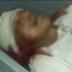 Gari morre ao ter cabeça quebrada por caminhão compactador de lixo em Araioses