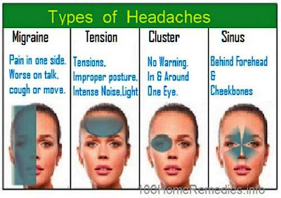Types of Headaches - migraine, tension, sinus, Cluster
