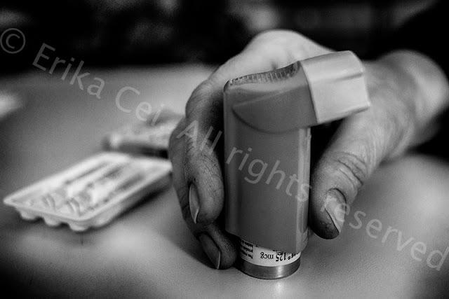 Servola inalatore cortisonico per asma