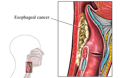 Esophagus Cancer Symptoms and Treatments