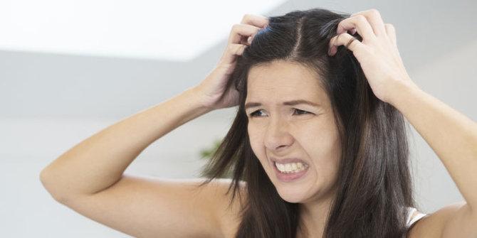 Cara Menghilangkan Kerak Psoriasis Di Kulit Kepala Sampai Tuntas
