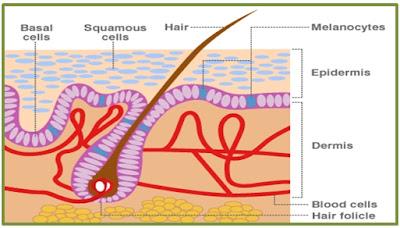 obat herbal kanker kulit