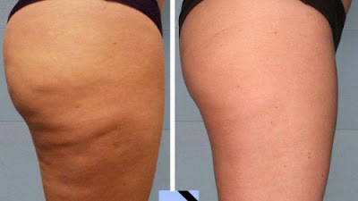 Cellulite: 2 remèdes anti-cellulites faciles à faire à la maison