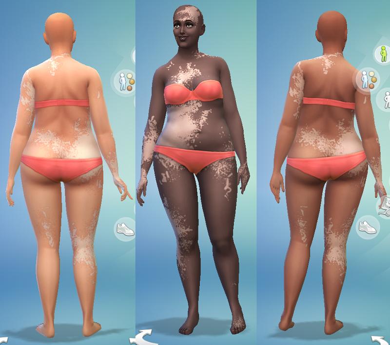 My Sims 4 Blog Vitiligo For The Sims 4 By Jongarakun
