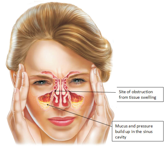 penyakit sinusi
