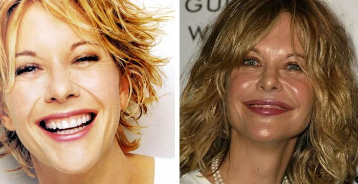 Chatter Busy Meg Ryan Plastic Surgery