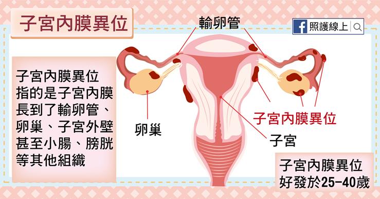 經痛與不孕的罪魁禍首 – 子宮內膜異位(懶人包) - 照護線上