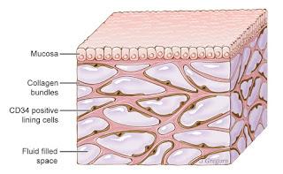 The interstitium, showing collagen bundles, mucosa, and fluid filled space (Wikimedia Commons, Jill Gregory / Mount Sinai - http://www.jillkgregory.com/)
