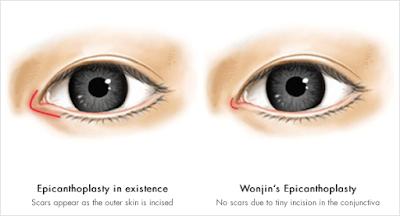 Magic Epicanthoplasty, Korean Best Eye Plastic Surgery