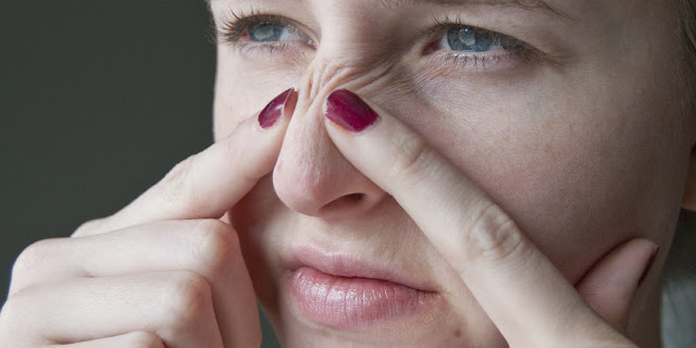 cara menghilangkan komedo secara alami dan cepat di hidung dan wajah