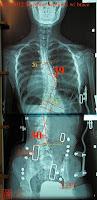 脊椎側彎, 脊椎側彎矯正, 脊椎側彎治療, 脊椎側彎矯正運動, , 脊椎側彎 瑜珈, 脊椎側彎復健