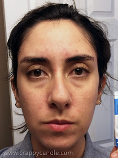 3.5 Month Tretinoin Cream Progress (!) :: The Acne Experiment