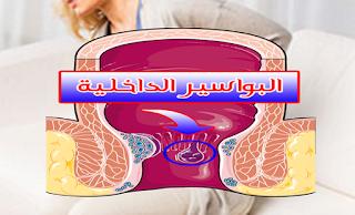 طرق طبيعية لعلاج البواسير الداخلية - اعراض البواسير - اسباب البواسير - انواع البواسير