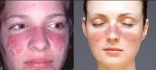 Perawatan Penderita Lupus