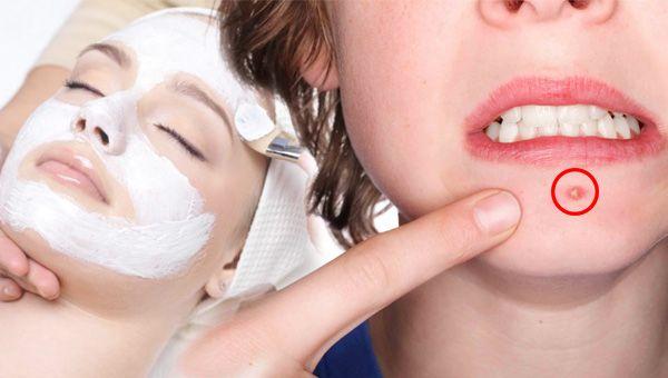 doğal akne maskesi tarifi - KahveKafeNet