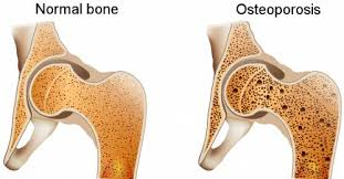 Obat osteoporosis