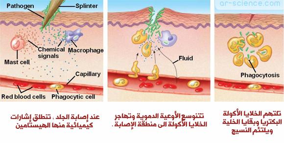 الالتهاب Inflammation