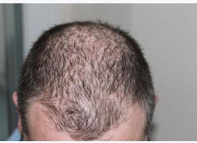 Penyebab Rambut Rontok Dan Cara Mengobatinya