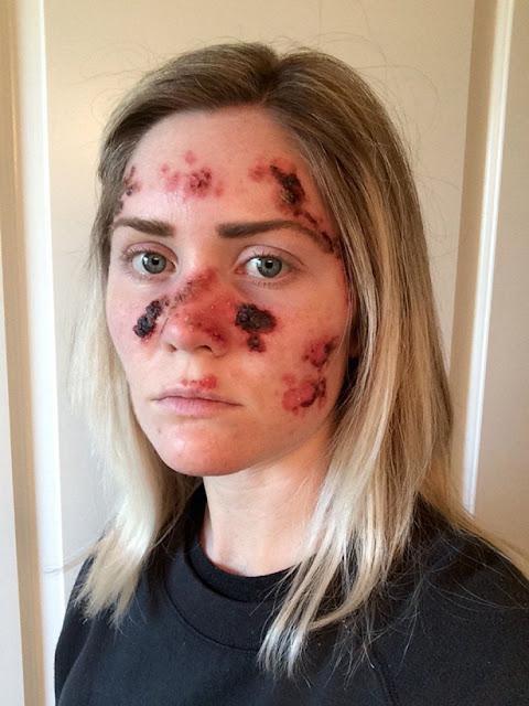 جهاز تسمير البشر سرطان الجلد