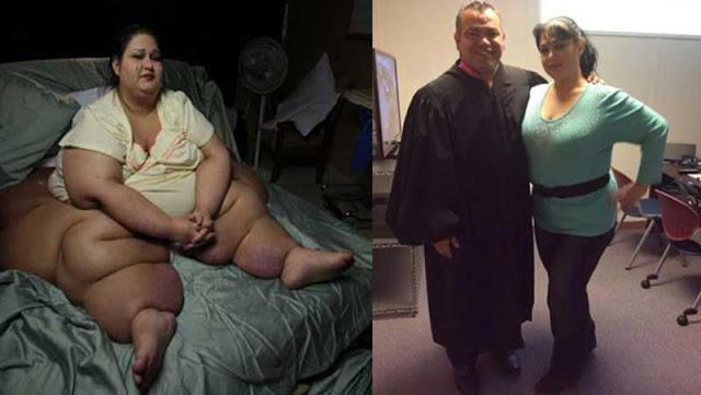 Resultado de imagen para No Creerás Como Luce 5 Años Después La Mujer Más Gorda De La Historia. Mira Como Lo Hizo!!!