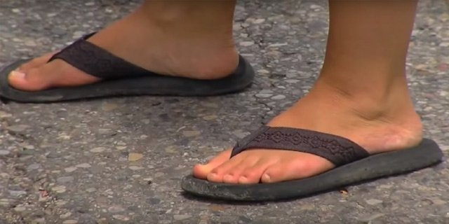 Doctors Recommend Avoiding Flip Flops This Summer