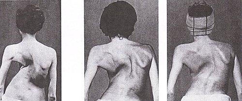 脊椎側彎矯正運動, 脊椎側彎, 脊椎側彎矯正治療, 脊椎側彎 復健