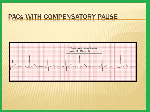 Premature Junctional Contraction P Wave Telemetry Technician C...