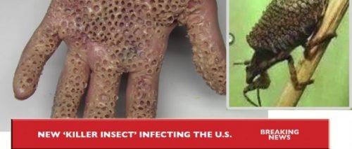 Ces insectes br lent la peau comme l acide provoquant ainsi la mort en quelques jours hors de - Tuer un arbre avec de l acide ...