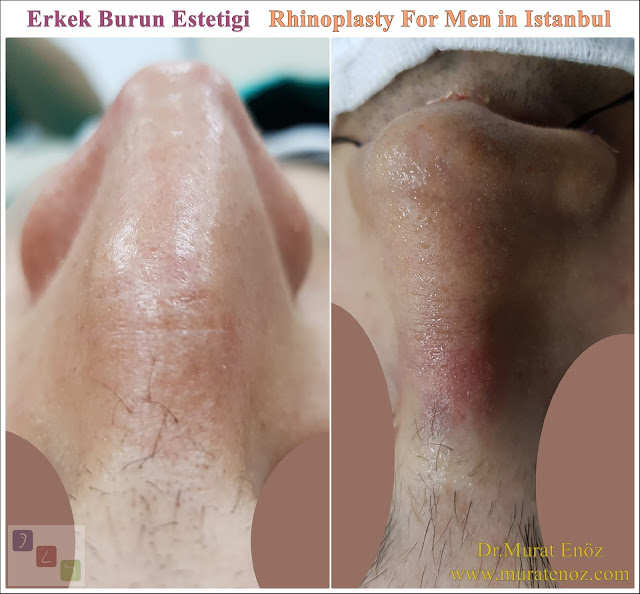 Rhinoplasty in Men Istanbul - Nose Job Surgery For Men - Male Rhinoplasty - Men's Rhinoplasty - Nose Reshaping for Men - Mens Rhinoplasty - Nose Job Rhinoplasty for Men - Rhinoplasty For Men Istanbul - Nose Aesthetic for Men - Male Nose Operation - Male Rhinoplasty Surgery in Istanbul - Male Rhinoplasty Surgery in Turkey - Male Nose Aesthetic Surgery - Rhinoplasty In Mens