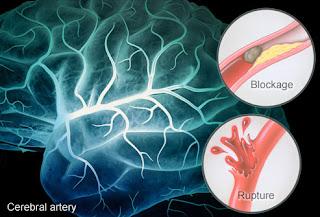 Kehilangan kemampuan motorik pada bagian tubuh tertentu akibat stroke