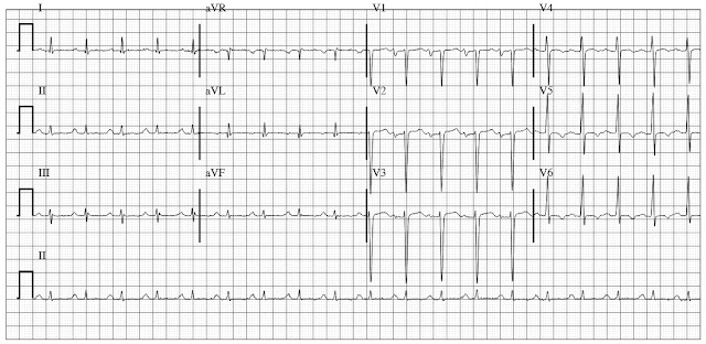 ECG of dilated cardiomyopathy