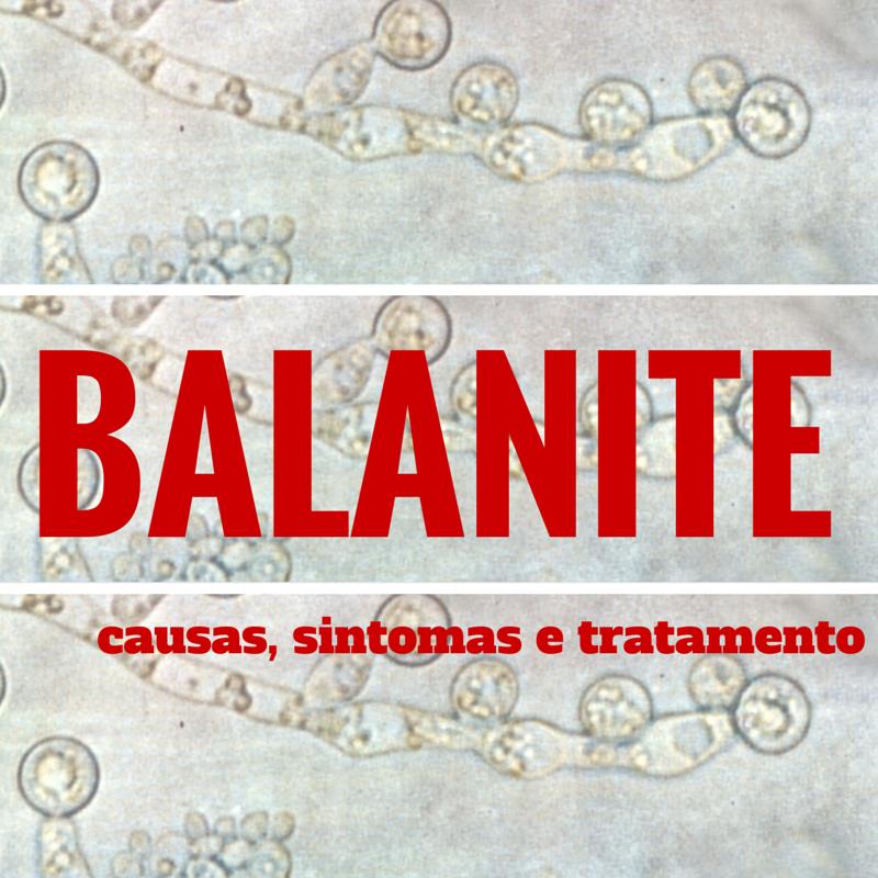 BALANITE TRATAMENTO EPUB