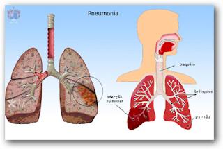 Gejala Penyakit Pneumonia Dalam Tubuh Manusia