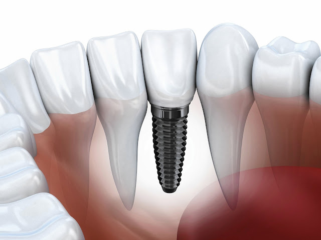 Dental Implant In Jamnagar