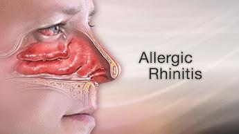 obat rhinitis herbal
