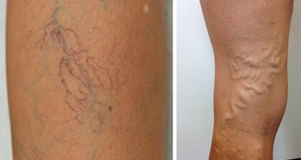 They Say Doing THIS Everyday Can Get Rid Of Varicose And Spider Veins. Totally BRILLIANT!( VIDEO)