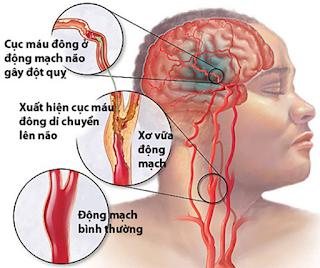 Nguy cơ đột quỵ do xuất huyết não bạn nên biết