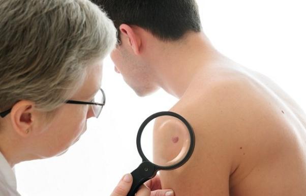 Kumpulan Obat Penyakit Kulit Herpes Menahun Alami Dan Ampuh