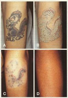 Dövme Silme Yöntemleri