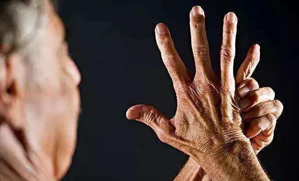 身體出現3個信號,說明尿酸高得可怕!巧用5穴降尿酸、止痛風(腎臟)